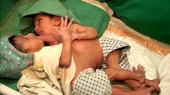 Video : NDTV viewers help conjoined twins