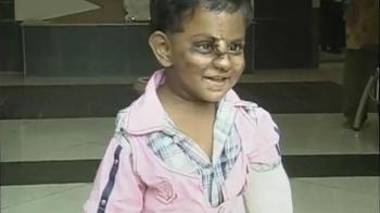 Video : Ray of hope for baby Srinivasa