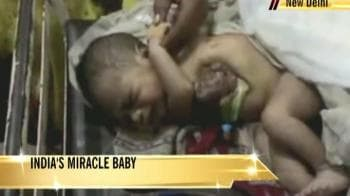 Video : 2-hour surgery saves 'miracle baby'