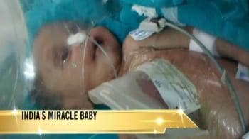 Video : India's miracle baby recovers in hospital